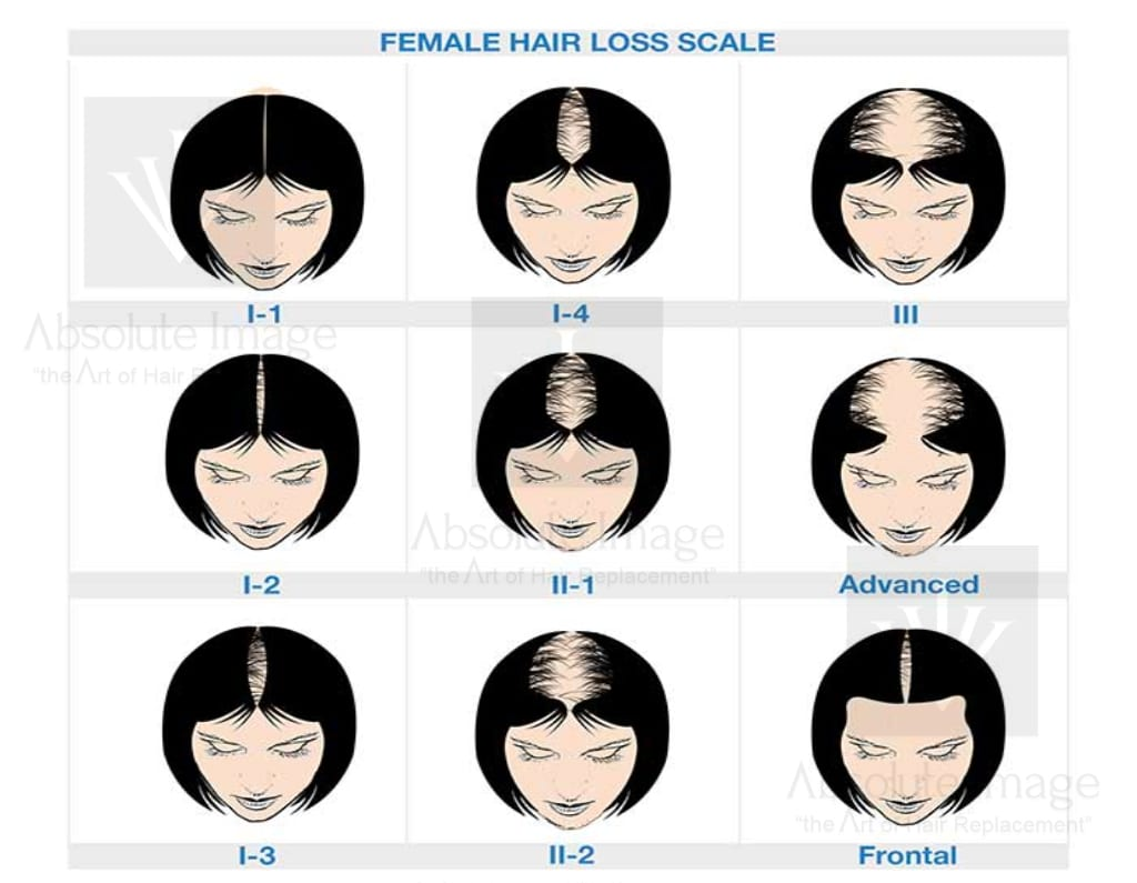 Ludwig Hair Loss Scale - Absolute Image Consulting