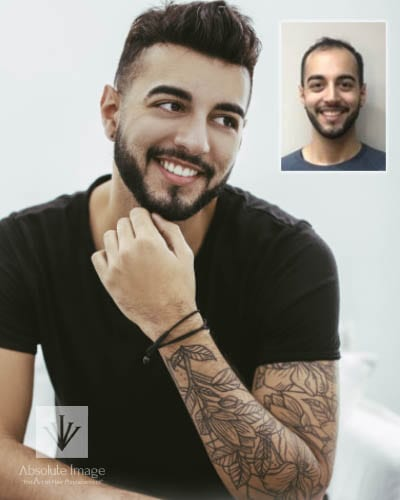 Men's Non-Surgical Hair Replacement - Gallery
