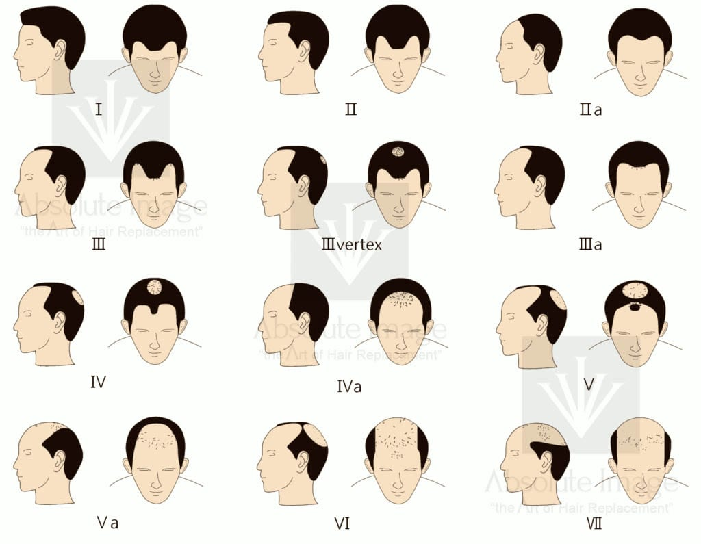 Norwood Hair Loss Scale - Absolute Image Consulting