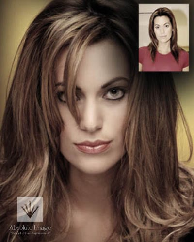 Women's Non-Surgical Hair Replacement - Gallery