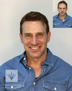 Jarrett Hill Mens Non-Surgical Hair Replacement Absolute Image Consulting Atlanta Georgia